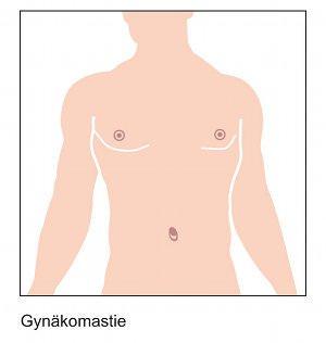 Warum fing auf 8 Woche die Brust an, weniger weh zu tun