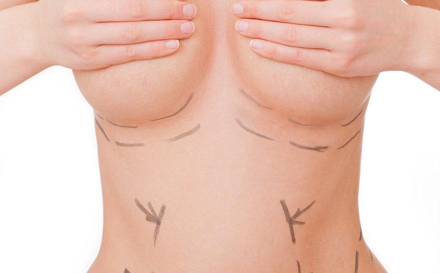 Ist eine Brustvergrößerung ohne Implantat möglich?